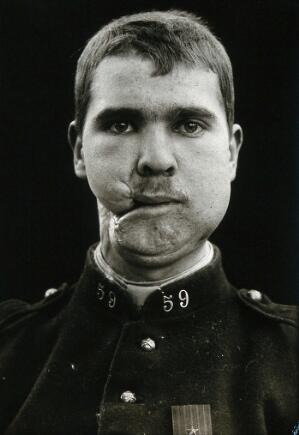 view Cranio-facial injury: a French soldier after incomplete plastic surgery to the lower face and neck. Photograph, 1916.