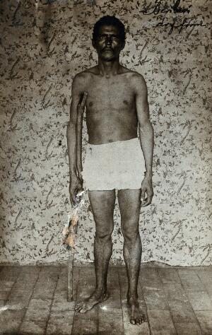 view A man suffering from dry beri-beri standing bare-chested, holding a walking stick. Photograph, 1910/1920.