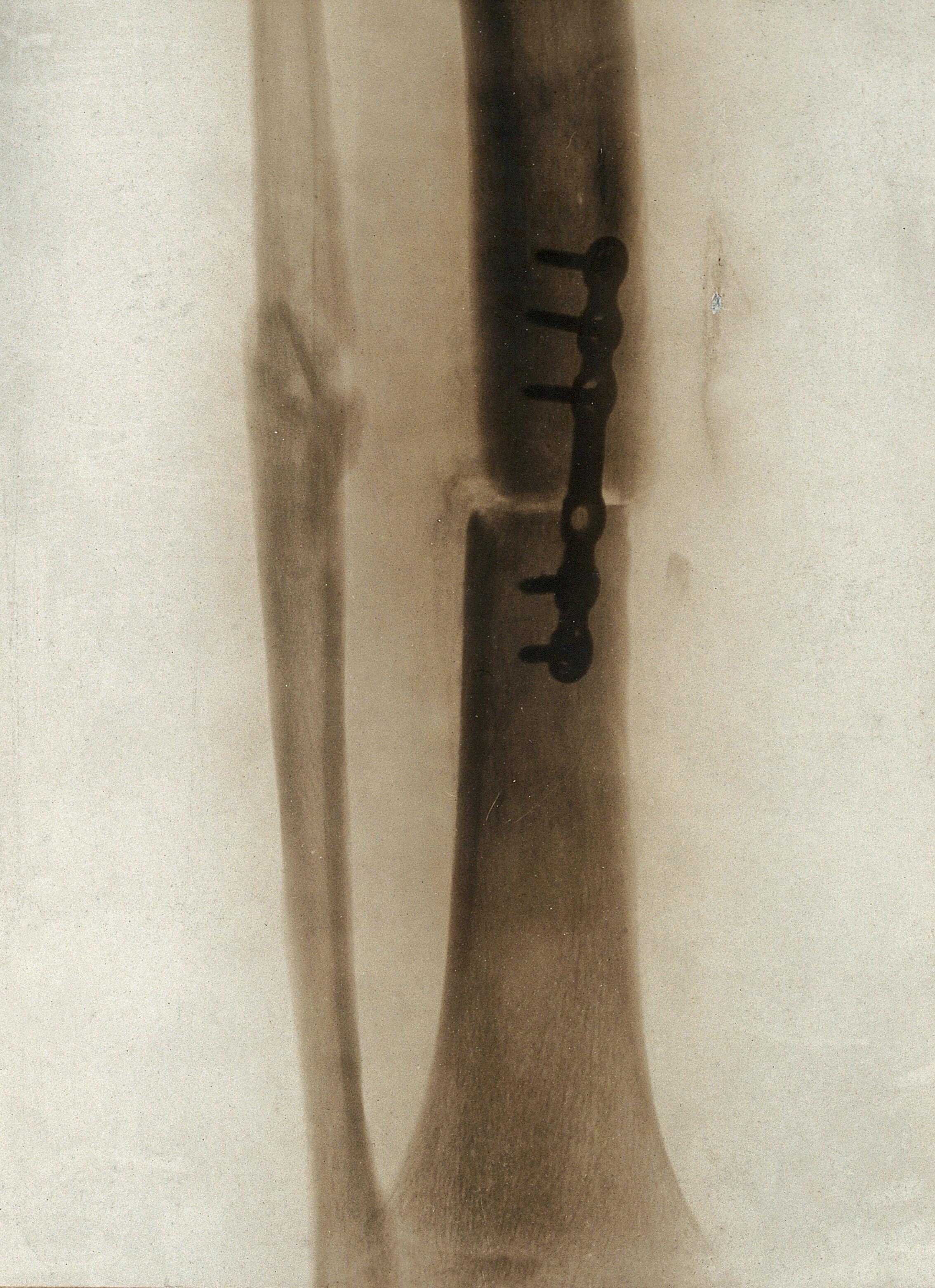 A leg fracture: showing a plate holding the bone in position