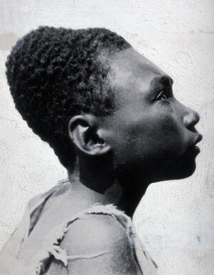 view Cranial deformation in Bougainville. Photograph by T.J. Macmahon, ca. 1919.
