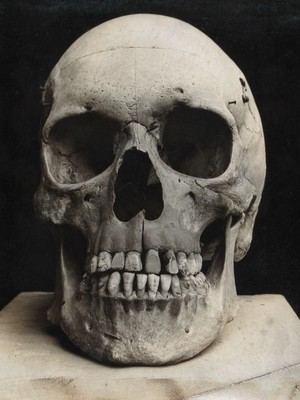 view A skull prepared for demonstration: front view. Photograph.
