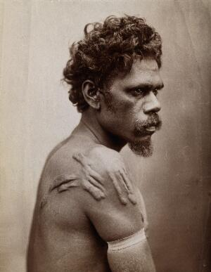 view Australia: an Aboriginal man with a raised (septic?) scarification on his shoulder. Photograph by Henry King, ca. 1890.