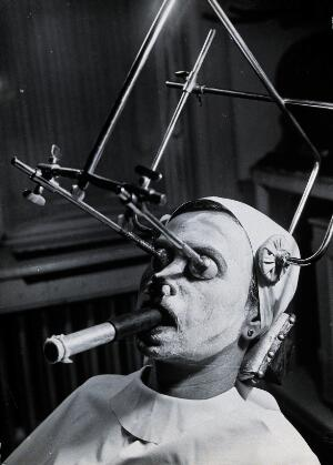 view Freckle removal: a woman having a skin peel to remove freckles reclines with a metal contraption positioning her head and a breathing tube in her mouth, Hungary. Photograph by André Just, ca. 1937.