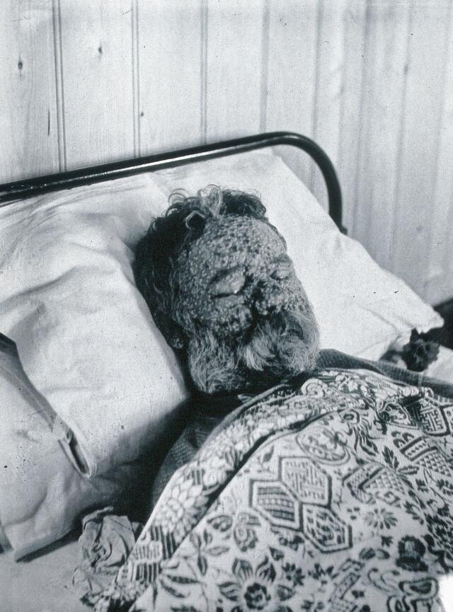 Gloucester smallpox epidemic, 1896: George Steel as a smallpox patient. Photograph by H.C.F., 1896.