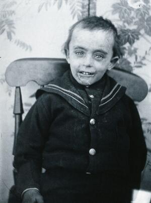 view Gloucester smallpox epidemic, 1896: a boy named Matthews, a smallpox patient. Photograph by H.C.F., 1896.