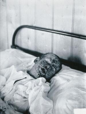 view Gloucester smallpox epidemic, 1896: Henry Wicklin, aged 6 years, as a smallpox patient. Photograph by H.C.F., 1896.