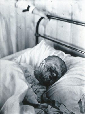 view Gloucester smallpox epidemic, 1896: Mary Wicklin, aged 4 years, as a smallpox patient, a few days before her death. Photograph by H.C.F., 1896.