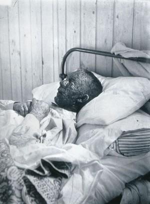 view Gloucester smallpox epidemic, 1896: Ephraim Beard, a smallpox patient. Photograph by H.C.F., 1896.