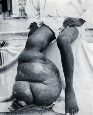 view Elephantiasis in the right leg of an inhabitant of the West Indies. Photograph.