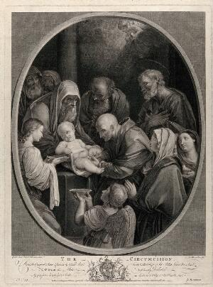 view The circumcision of Christ by a bald mohel. Etching by F.G. Aliamet, 1765, after G. Reni.