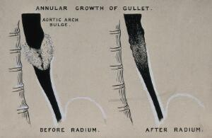 view Annular growth of gullet; left, before radium; right, after radium. Ink drawing, ca. 1930.