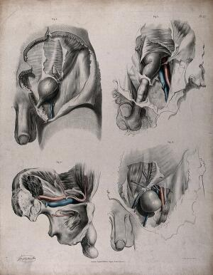 view The circulatory system: dissections of the male reproductive system, with the arteries and veins indicated in red and blue. Coloured lithograph by J. Maclise, 1841/1844.