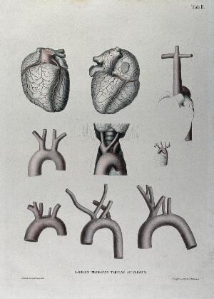 view The heart, arteries of the neck and the aortic arch (?): nine figures, with arteries indicated in red. Coloured lithograph by J. Roux, 1822.
