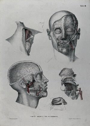 view Dissections of the face, neck and jaw: five figures, with the arteries and blood vessels indicated in red. Coloured lithograph by J. Roux, 1822.