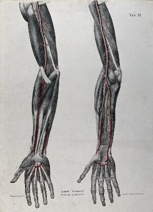 view Dissection of the arm and hand; two figures, with the arteries and blood vessels indicated in red. Coloured lithograph by J. Roux, 1822.