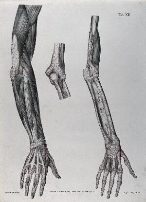 view Dissections of the arm, hand and elbow joint; three figures, with the blood vessels indicated in red. Coloured lithograph by J. Roux, 1822.