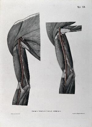 view Dissections of the shoulder and arm; two figures, with the arteries and blood vessels indicated in red. Coloured lithograph by J. Roux, 1822.