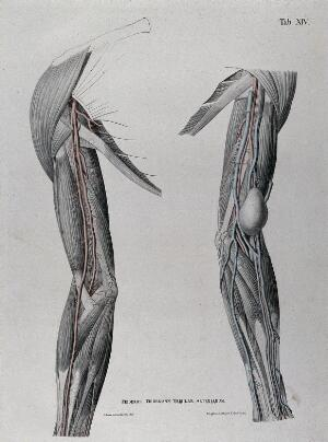 view Dissections of the shoulder and arm; two figures, one showing a tumour or growth (?), with the arteries and blood vessels indicated in red. Coloured lithograph by J. Roux, 1822.