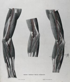 view Dissections of the arm and elbow; three figures, with the arteries and blood vessels indicated in red. Coloured lithograph by J. Roux, 1822.