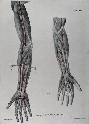 view Dissections of the arm and hand; two figures, with the arteries and blood vessels indicated in red. Coloured lithograph by J. Roux, 1822.