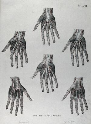view Dissections of the hand; six figures, with the arteries and blood vessels indicated in red. Coloured lithograph by J. Roux, 1822.