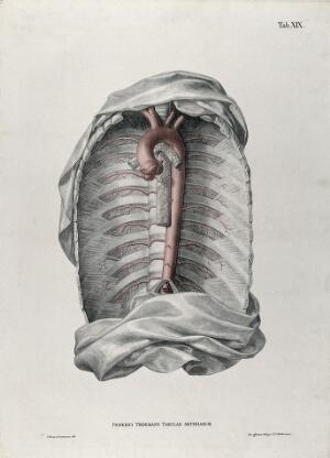 view Dissection of the thorax, with the aortic arch, arteries and blood vessels indicated in red. Coloured lithograph by J. Roux, 1822.
