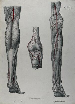 view Dissections of the lower leg, knee joint and foot, back view: three figures, with the arteries and blood vessels indicated in red. Coloured lithograph by J. Roux, 1822.