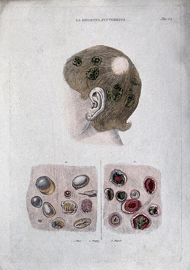 Anatomy and botany; top, human head with external tumours; bottom, cells (?). Coloured engraving, 1834-1837.