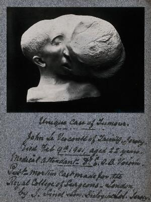 view Tumour on the face of the patient John Le Visconte: a post-mortem head and shoulders plaster cast. Photograph, ca. 1901, of a plaster cast by J. Sinel & Son, 1901.
