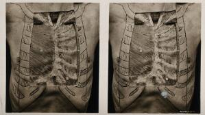 view Anatomy: a dissection of the thorax: the anterior thoracic wall. Photograph, ca. 1900.