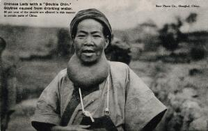 view A Chinese woman suffering from a goitre. Photographic postcard, ca. 1930.