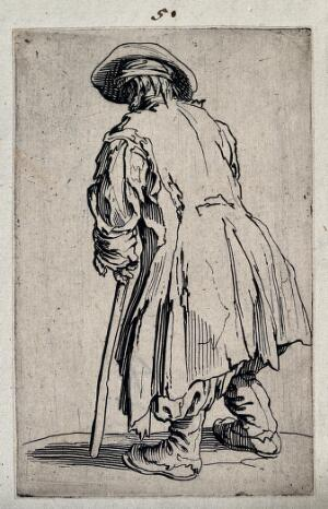 view Beggar with one crutch, seen from behind. Etching with engraving by Jacques Callot, ca. 1622.