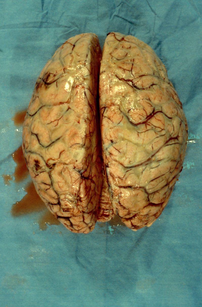 Brain: bacterial meningitis | Wellcome Collection