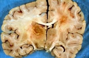 view Brain: cerebral toxoplasmosis and HIV
