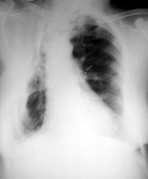 view Pulmonary TB: plain chest x-ray