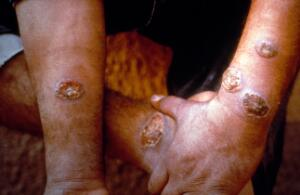view Old World cutaneous leishmaniasis (CL): multiple lesions
