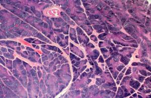 view Normal thymus