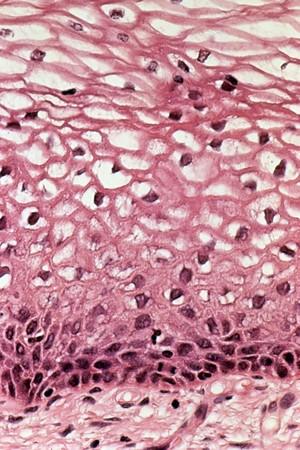 view Cervix: human papillomavirus (HPV) infection