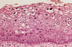 view Cervix: human papillomavirus infection