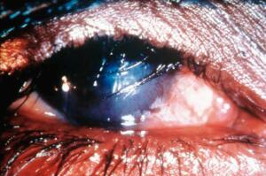 view Trachoma WHO grade: TT with CO