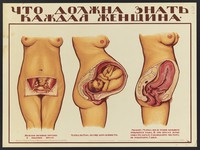 view Female genital organs before, during and after pregnancy. Colour lithograph by O. Gri︠u︡n, 1925.