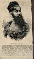 view Annie Jones-Elliot, a bearded woman. Wood engraving.