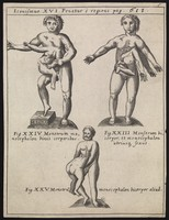 view Three human figures, each with superfluous body parts growing from their bodies. Engraving, 16--.