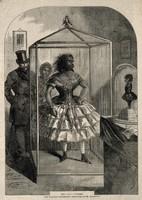 view Julia Pastrana, a bearded woman, embalmed. Wood engraving, 1862.
