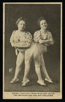 view Grown together twins Rosa and Josefa : two mothers and one son Frantz.