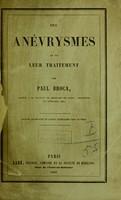 view Des aneurysmes et de leur traitement / par Paul Broca.