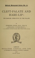view Cleft-palate and hare-lip : the earlier operation on the palate / by Edmund Owen.