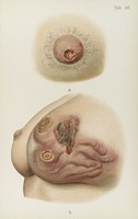 view Coloured illustration of female breast diseased with Syphilis.