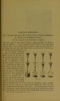 view Pleural effusion / by T. Lauder Brunton.
