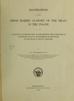 view Illustrations of the gross morbid anatomy of the brain in the insane : A selection of seventy-five plates showing the pathological conditions found in post-mortem examinations of the brain in mental diseases / by I.W. Blackburn, M.D., pathologist to the Government Hospital for the Insane, Washington, D.C.